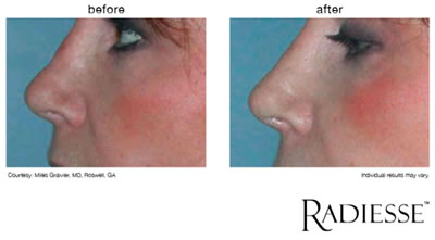 nonsurgicalnosecorrection